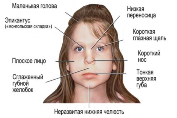 http://gidmed.com/narkologiya/alcogolizm/fetalnij-alkogolnij-sindrom.html